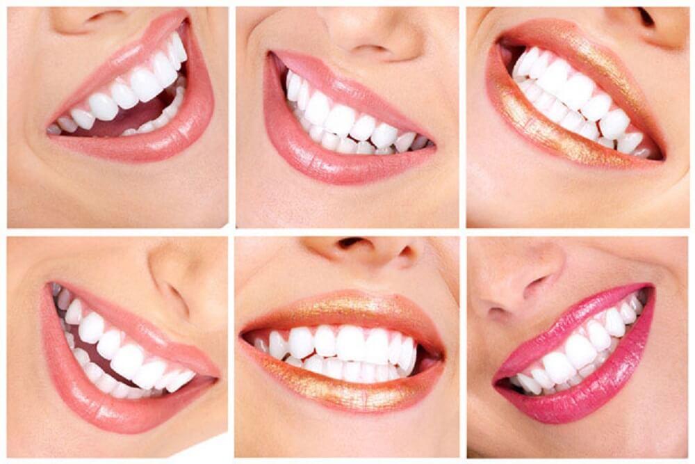 Гигиеническая чистка зубов новые фото