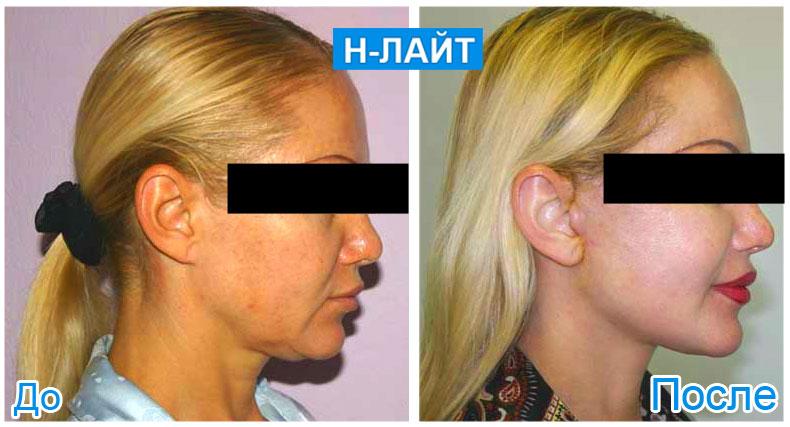 cosmet-before-after-nlite_4