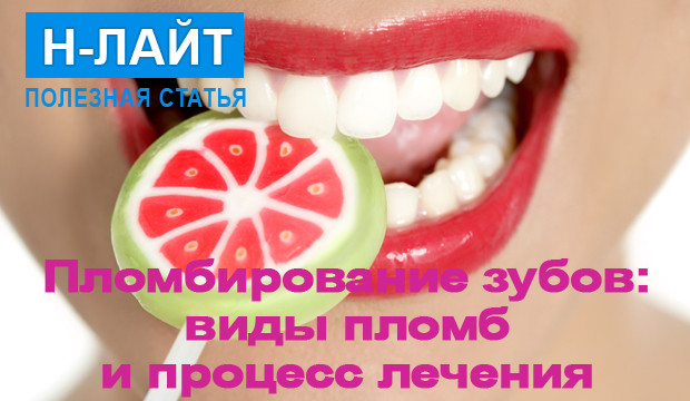 Пломбирование зубов: виды пломб и процесс лечения