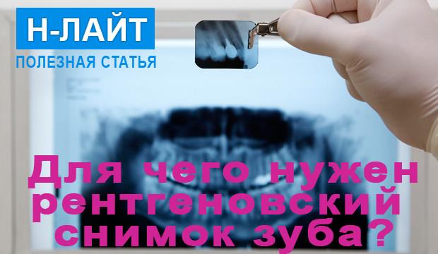 Для чего нужен рентгеновский снимок зуба?