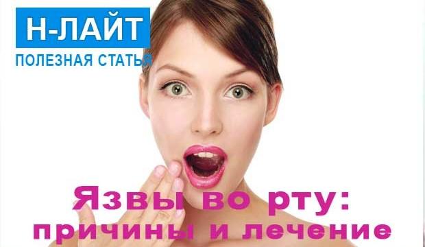 Язвы на слизистой оболочке рта: причины и лечение
