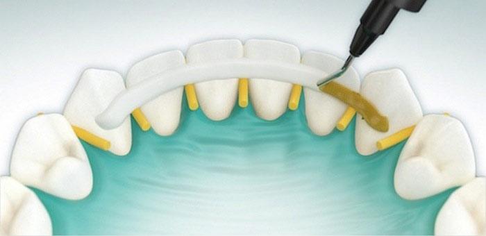 shinirovanie-zubov