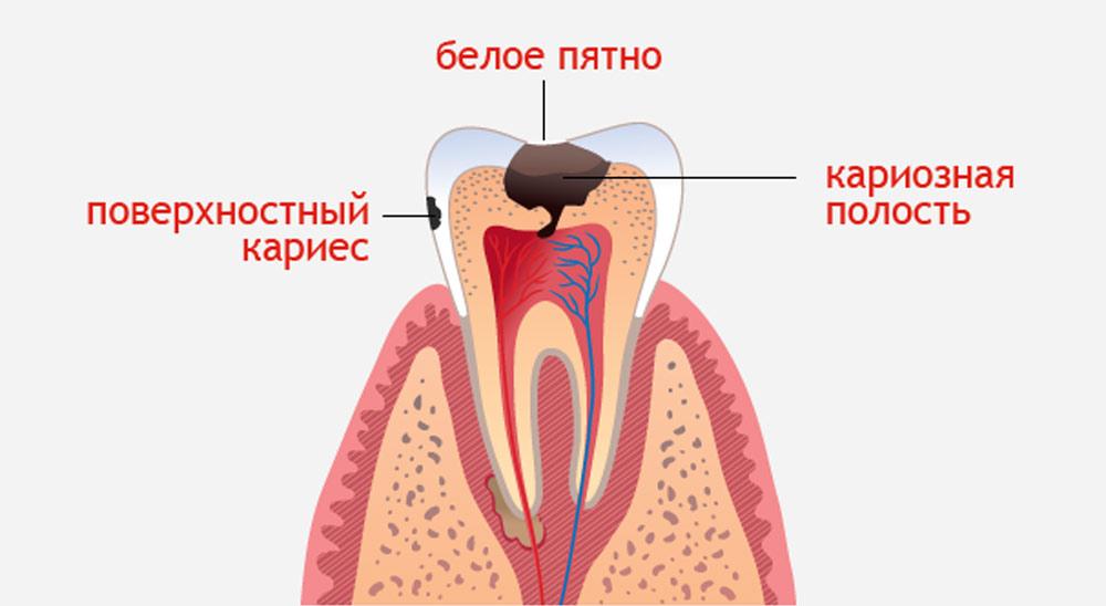 karies_zubnoy