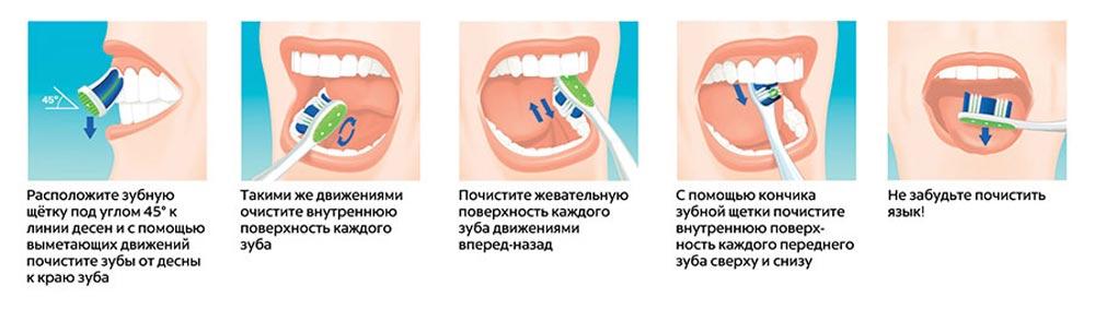 shema-kak-pravilno-chistit-zubi