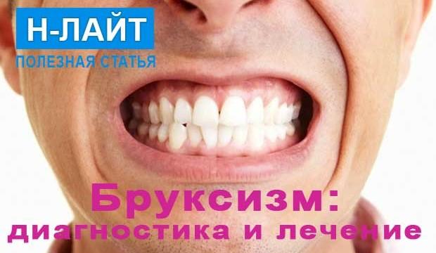 Бруксизм, скрежет или скрип зубами