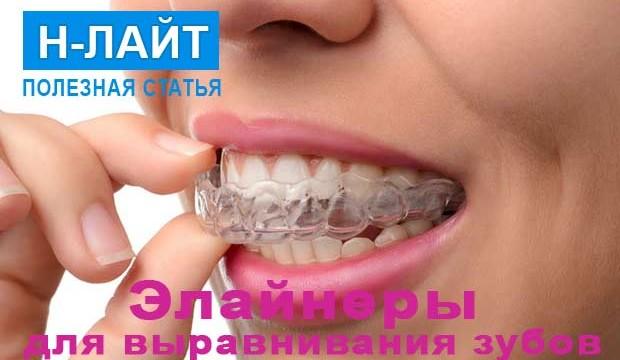 Элайнеры для выравнивания зубов – альтернатива брекетам!