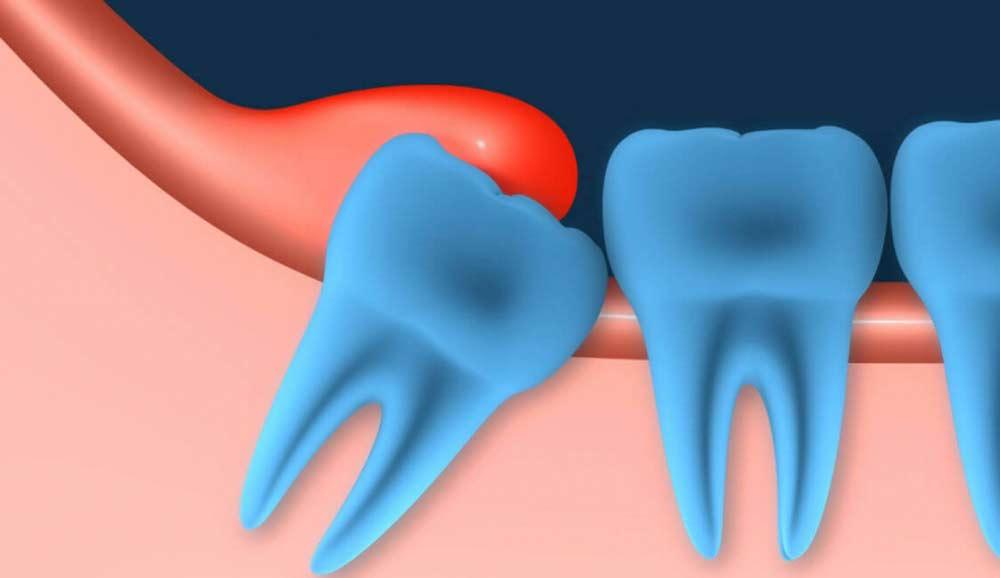 pochemu-bolit-zub-mudrosti-prichiny-i-simptomy-perikoronarita-lW1506979738