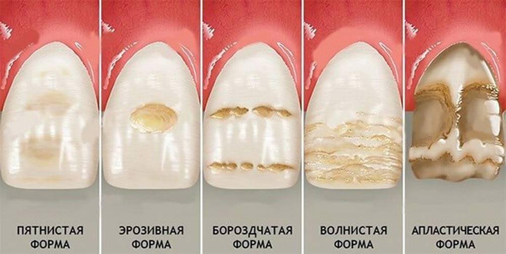 formy-gipoplazii-emali-zubov