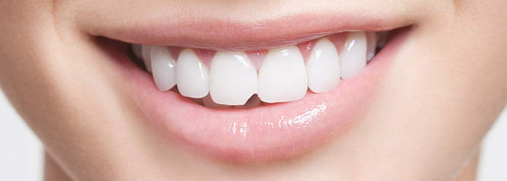 Chipped-Tooth-Repair-by-Dental-Bonding