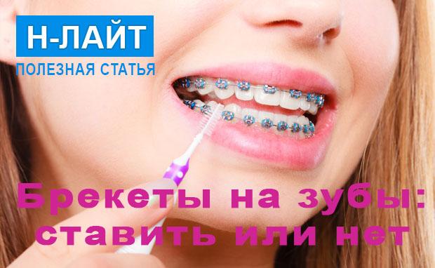 Брекеты на зубы – ставить или нет