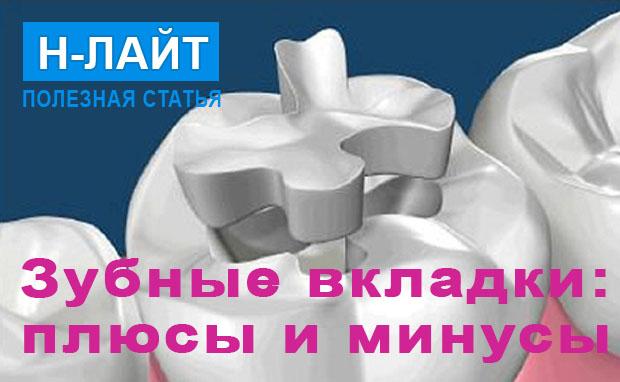Зубные вкладки вместо пломбы: плюсы и минусы