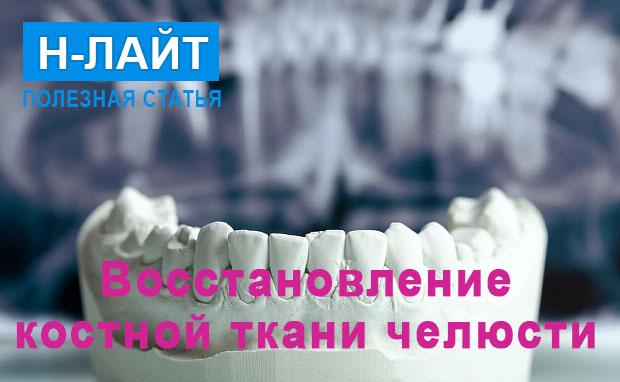 Восстановление костной ткани челюсти