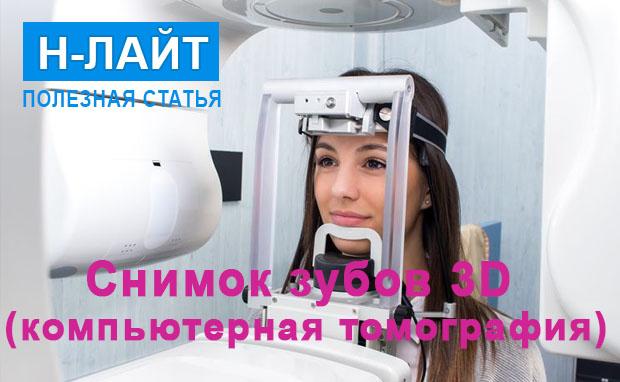 Снимок зубов 3D (компьютерная томография)